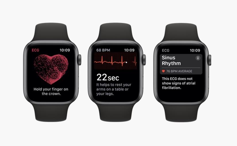 Apple watch individua ischemia miocardica non rilevata dall'ECG ospedaliero